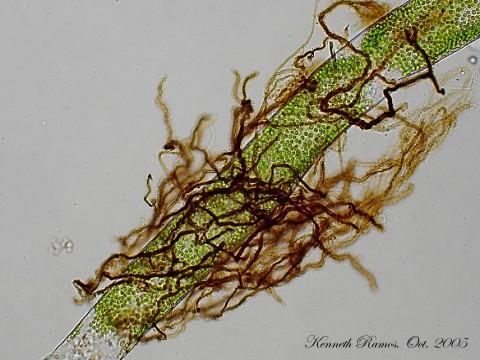 Actinomycetes3